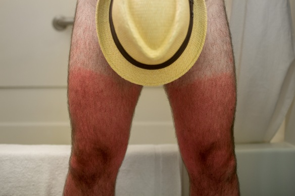 Seems my thighs didn't do the transition from the gentleman's long trousers to shorter swim shorts quite as well as I had hoped.